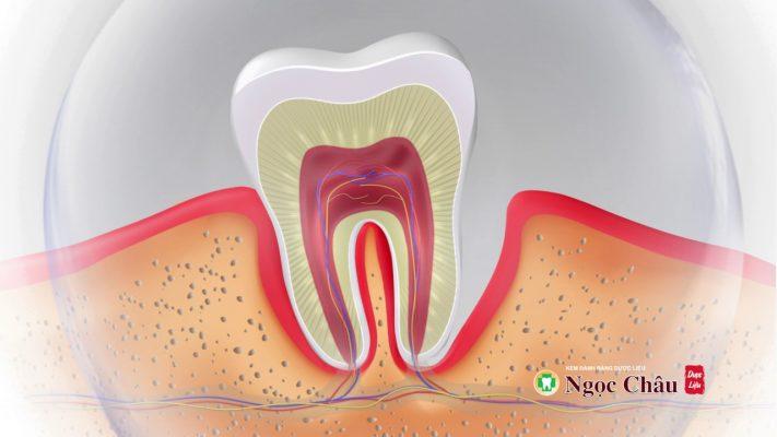 TT Thời Trang sâu-răng-711x400 Kem đánh răng dược liệu Ngọc Châu ( 100g )